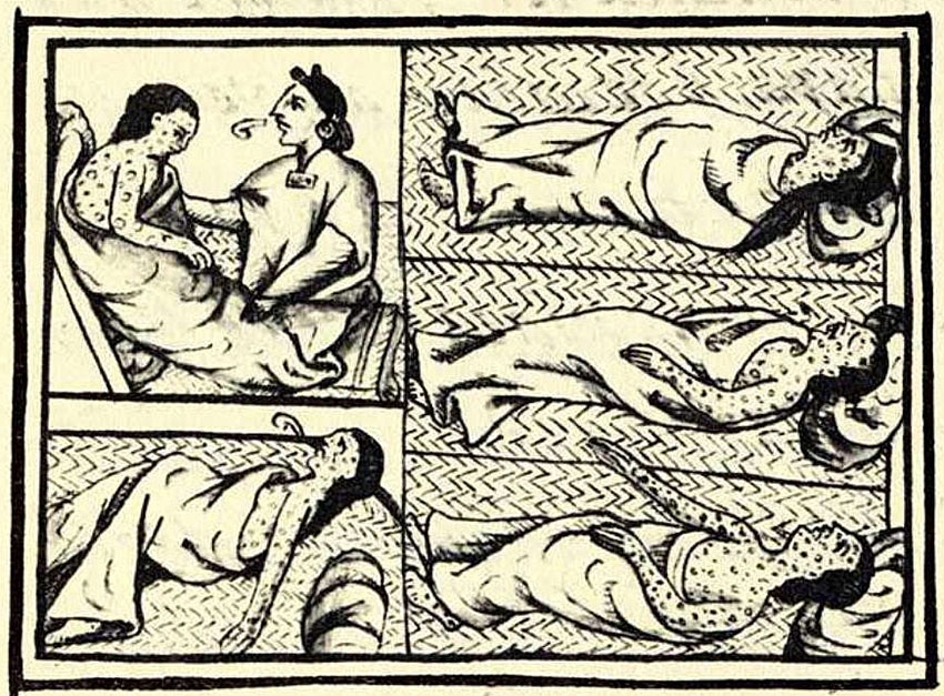 2 b Smallpox in