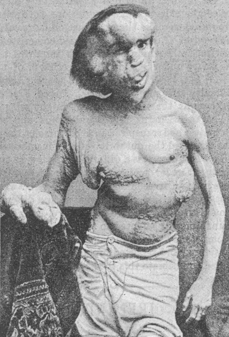enfermedades-raras